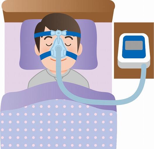 CPAP療法